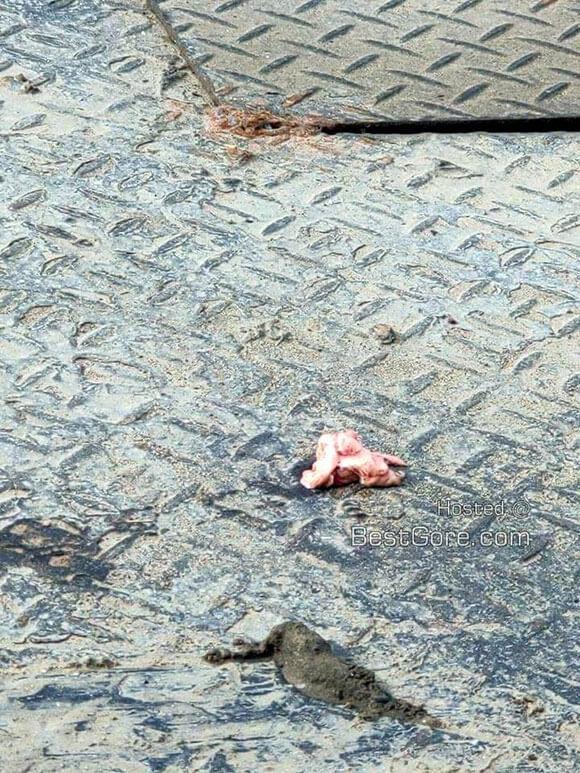 【閲覧注意】トラックとの事故に遭い頭が千切れて半壊状態の女性…