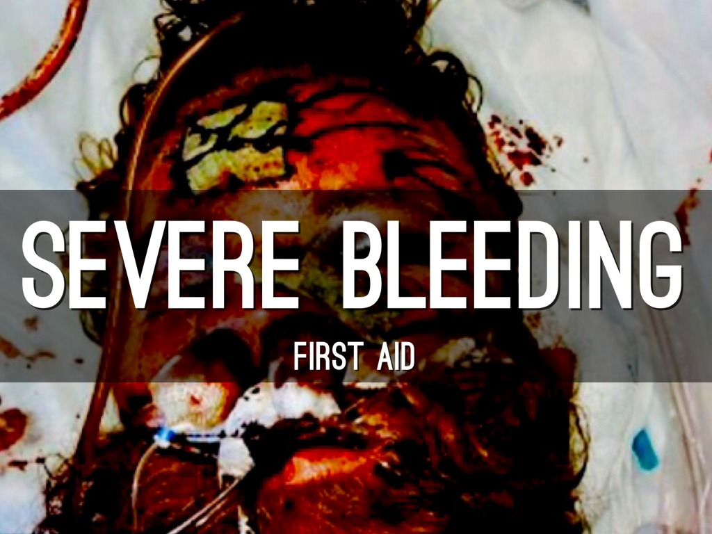 Severe Bleeding First Aid By Julia Soriano