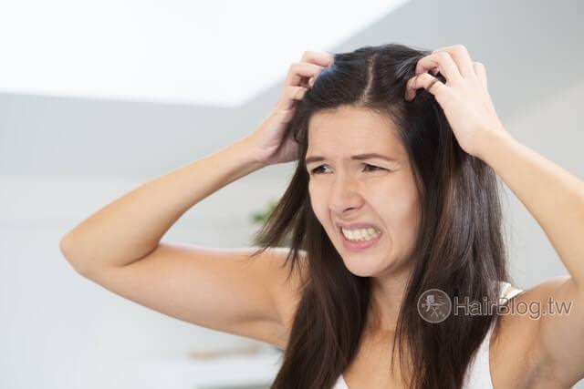 清潔過度頭皮又油又癢?