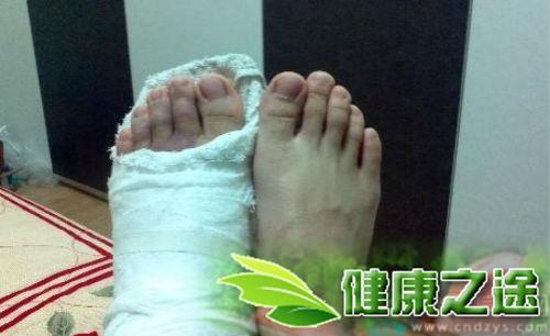 腳趾骨折怎麼辦 - 康途健康百科