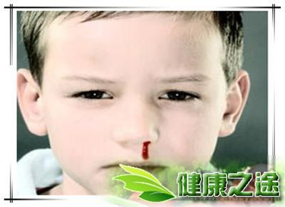 2歲寶寶經常流鼻血怎麼辦? - 康途健康百科