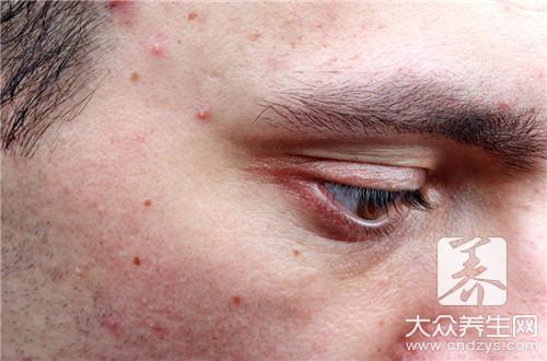 眼角長了個痘痘 - 康途健康百科