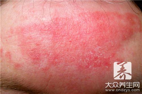 玫瑰糠疹會復發嗎 復發三大原因 - 康途健康百科