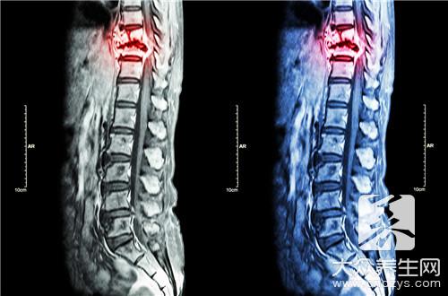 脊髓損傷的分類 - 康途健康百科