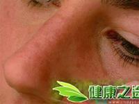 臉上背上長痘的治療方法 - 康途健康百科