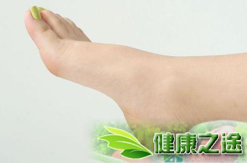 夏天腳起小水泡是什麼原因 - 康途健康百科