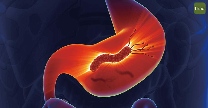 它是第一級致癌物!90%的胃淋巴瘤是幽門桿菌造成   Heho健康