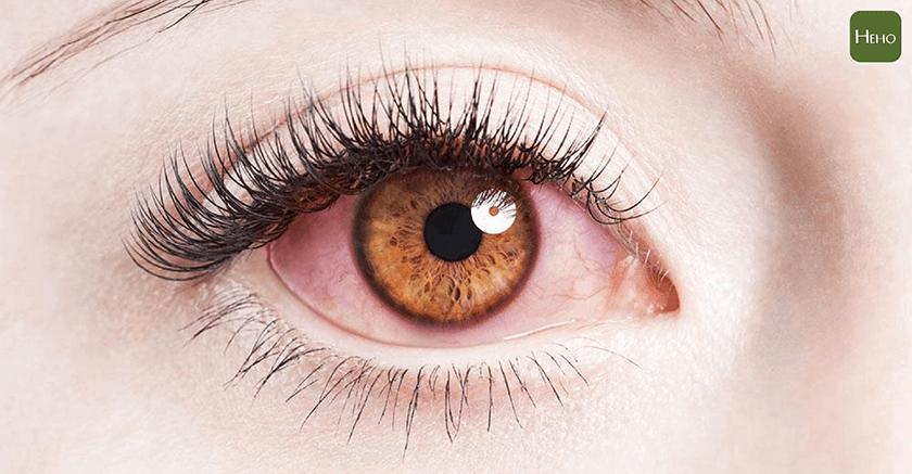 吹冷氣吹到眼睛充滿血絲!你可以戴「繃帶式隱形眼鏡」保護 | Heho健康