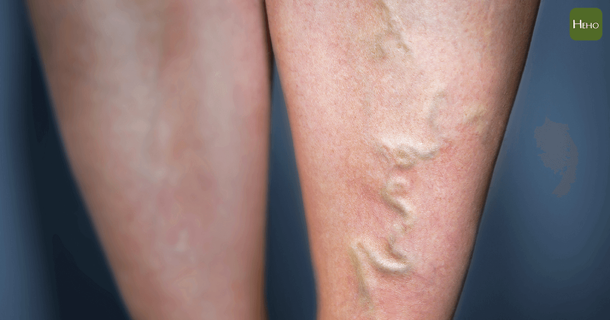 睡一覺起來腳就水腫,身體可能出了5種問題! | 蕃新聞