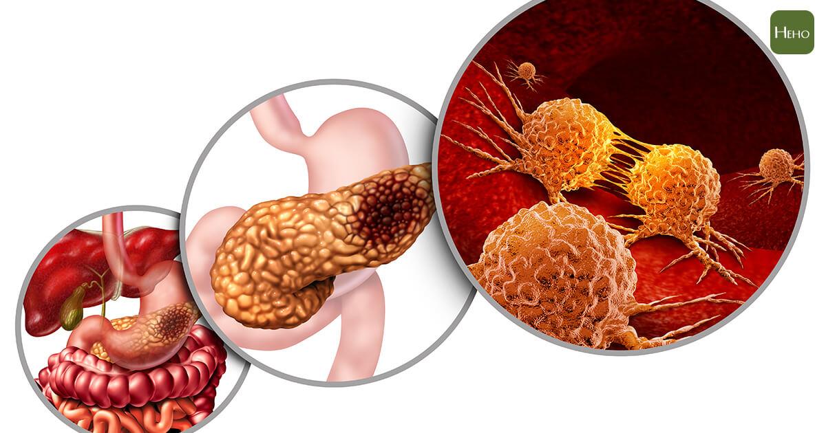 胰臟癌-01