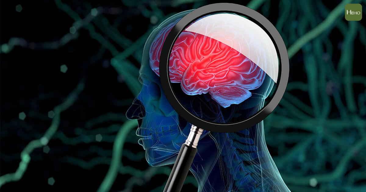 0115-血腦壁障