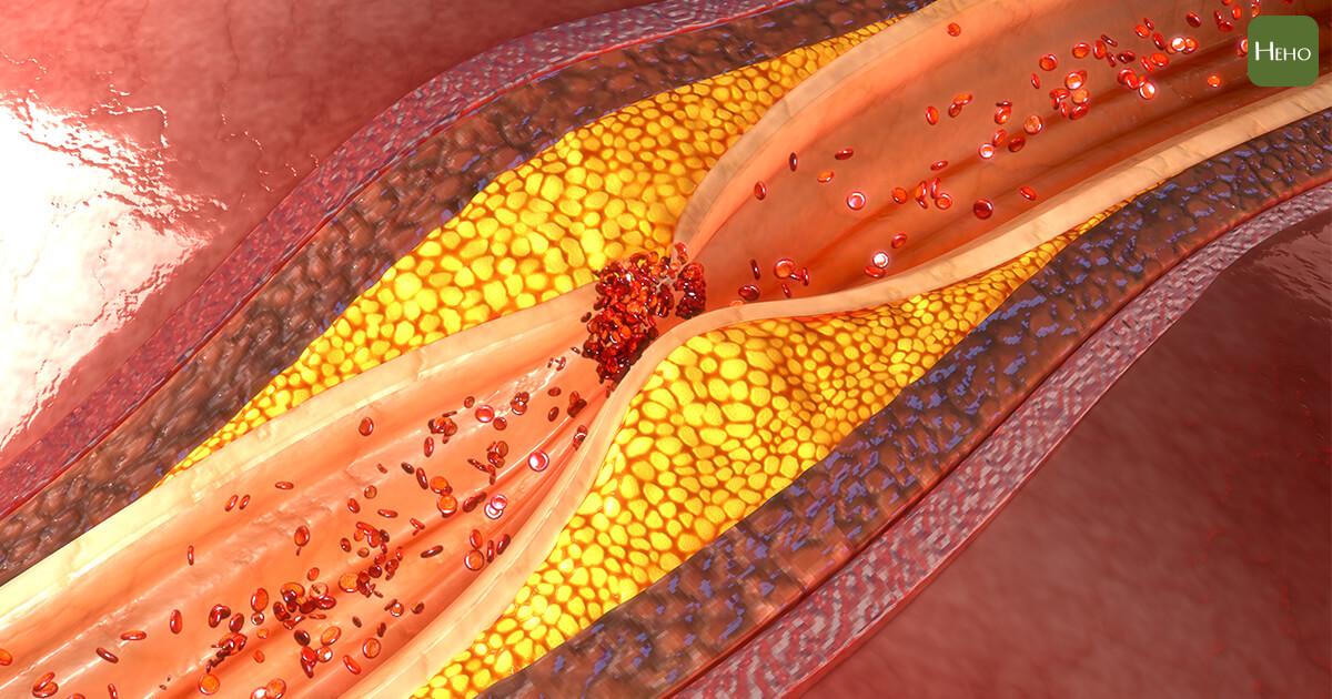 健檢膽固醇超標!醫師解釋低密度膽固醇到底「壞」在哪? | Heho健康
