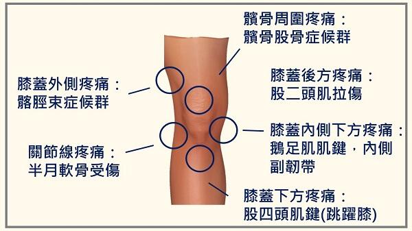 膝蓋半月軟骨受傷怎麼辦?4 招減痛還能避免二次傷害 | Heho健康