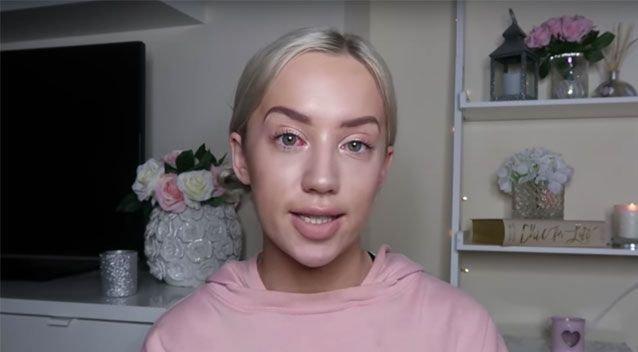 Ξενοδόχος στο Δουβλίνο διέσυρε YouTuber που του ζήτησε να τη φιλοξενήσει δωρεάν με αντάλλαγμα θετική κριτική
