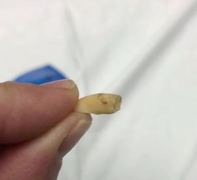 Nickolette Botsford claims she found this blood-covered tooth in a bag of Planters cashews.