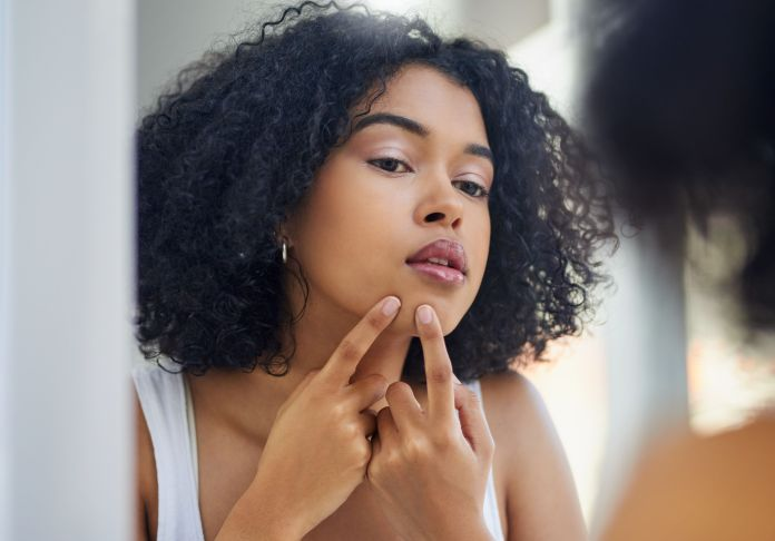 Image result for black girl Don't pick on your acne