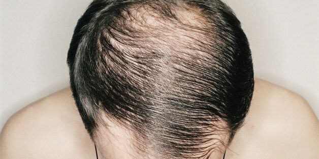 male baldness men bald