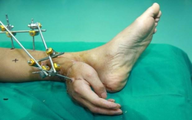 Mão decepada é salva após ser ligada ao tornozelo