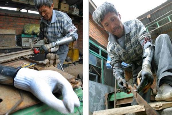Homem amputado produz os próprios braços biônicos