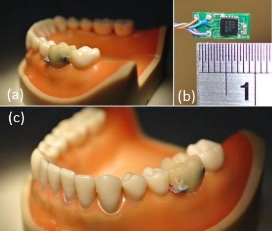 Sensor bucal detecta se você está fumando ou comendo demais