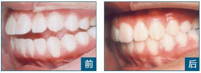 上海牙齒矯正的方法有哪些?聽聽上海整牙醫院醫師的介紹-趣讀
