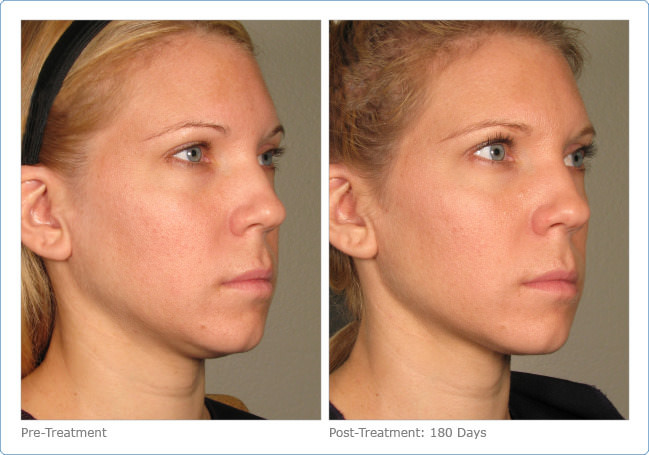 ultherapy_full_face_2-10