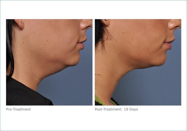 ultherapy_lower_face_2-2