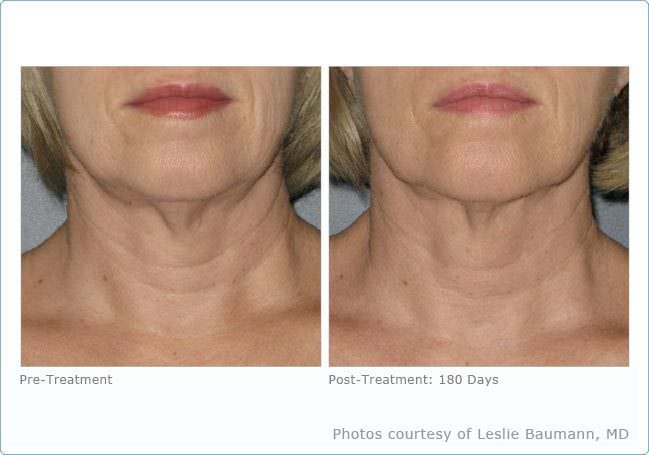 ultherapy_neck_4