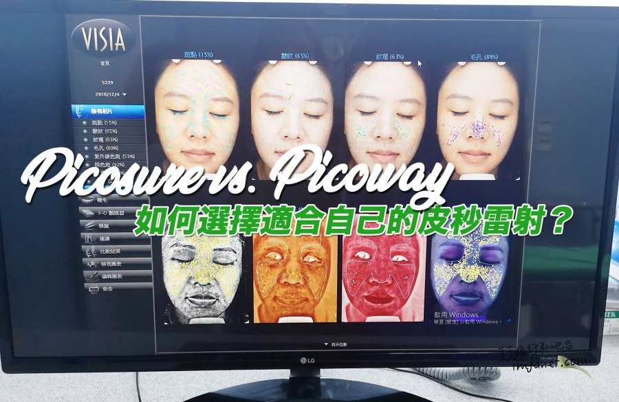 醫美|聖緹雅皮秒雷射PicoWay,和PicoSure有什麼差別?