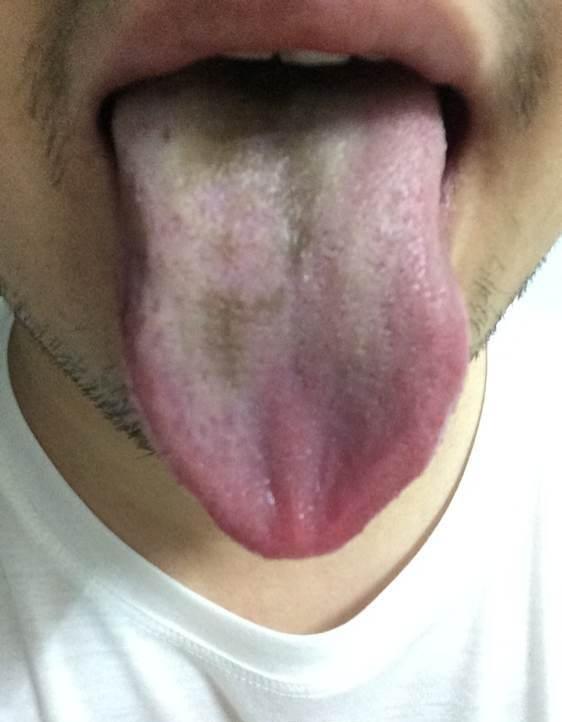 舌頭發黑是怎麼回事 舌頭發黑怎麼調理 - 愛我窩