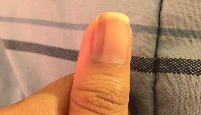 0raz73r35n8a2ny2uquz - 爪に「黒い線」があったら「この疾患」なのかもしれない?