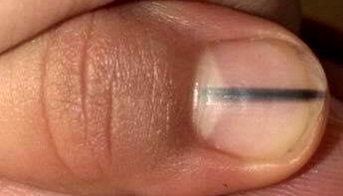 omncjb2e7p8w86b6x200 - 爪に「黒い線」があったら「この疾患」なのかもしれない?