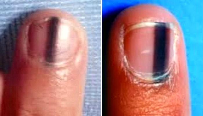 r1b89gl7mqq751809byi - 爪に「黒い線」があったら「この疾患」なのかもしれない?