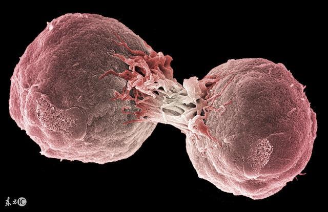 淋巴瘤癥狀:頸部淋巴癌又應該如何治療呢 - ITW01
