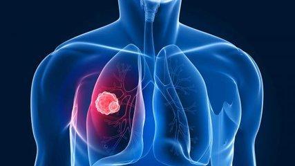 肺部結節是做穿刺活檢弄明白。還是定期去醫院做CT。哪個選擇更好 - ITW01