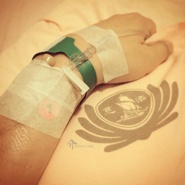 慈濟醫院住院筆記,內視鏡鼻竇手術,鼻息肉與腺樣體切除 - 李介介的介入影像