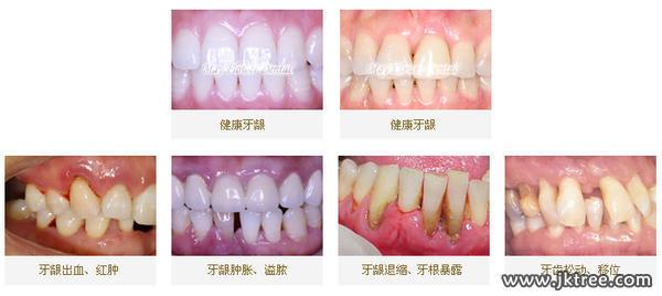 牙周病的診斷及治療(附圖)-健康樹