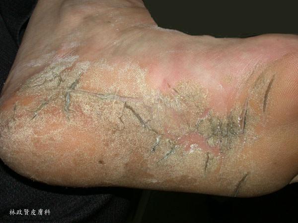 足下癢 不一定是香港腳 - 高雄皮膚專科林政賢醫師