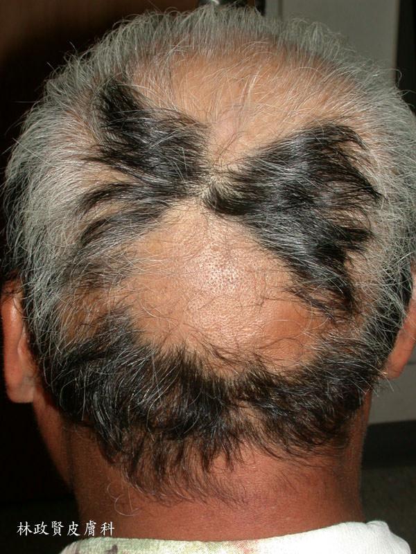 鬼剃頭 專找黑髮下手(圓禿,圓形禿) - 高雄皮膚專科林政賢醫師
