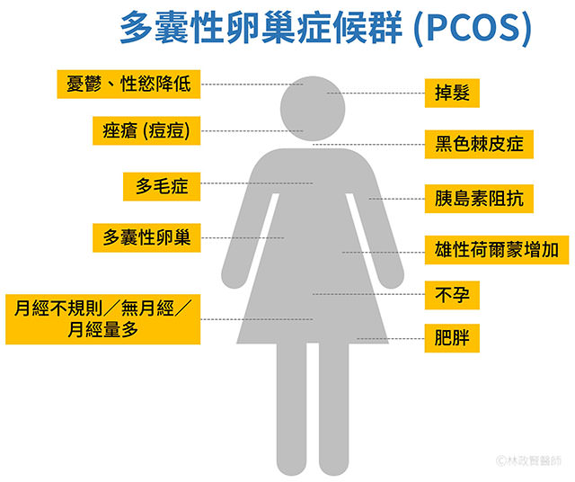 多囊性卵巢症候群,pcos,polycystic ovary syndrome