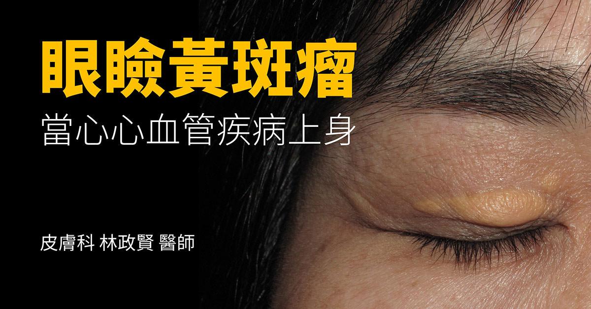 眼瞼黃斑瘤。當心心血管疾病上身 - 高雄皮膚專科林政賢醫師