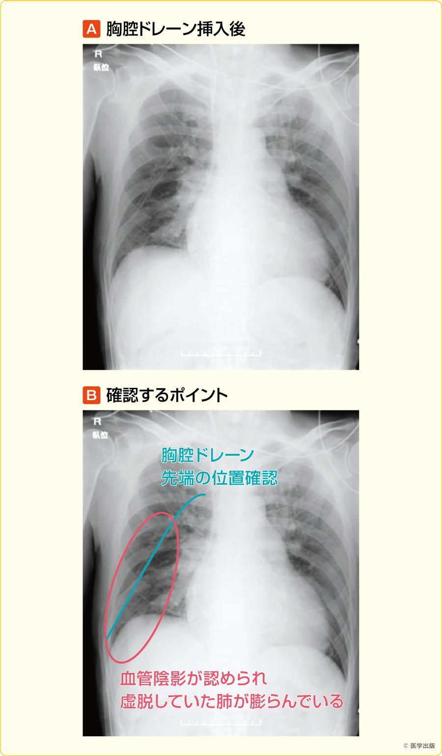 肺水腫 無料人名人物検索