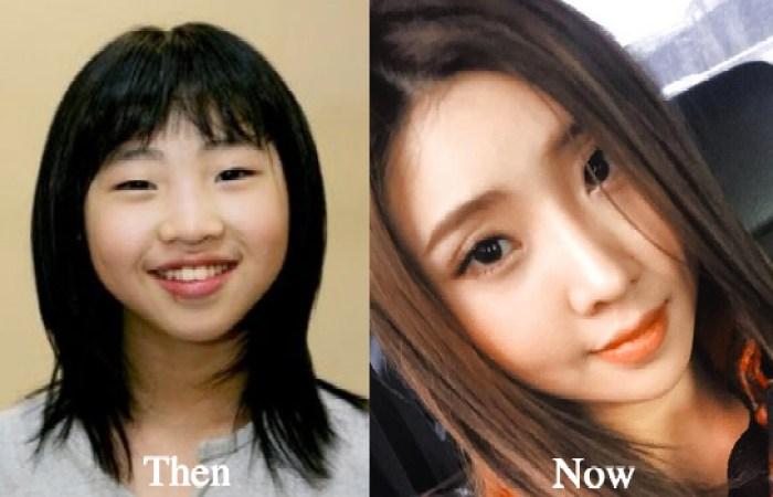 2ne1 minzy before after