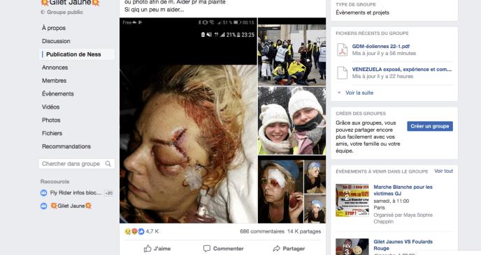 A partir de décembre, les «gilets jaunes» partagent de plus en plus des images de blessés graves. Souvent chocs, elles suscitent indignation, émoi et solidarité.
