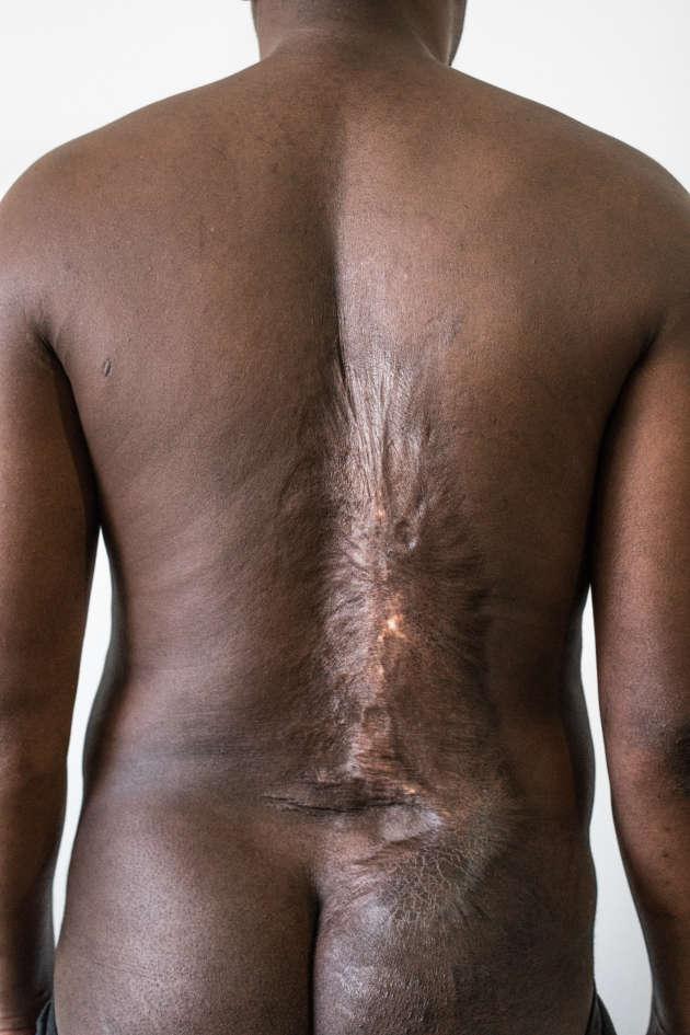 Parmi les migrants retrouvés par le photographe César Dezfuli en Europe, plusieurs avaient subi des tortures par brûlures lors de leur séquestration en Libye.