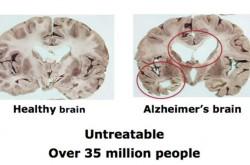 iPS細胞は脳疾患患者に希望をあたえた–傷ついた脳は修復可能なのか?