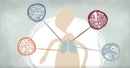 白血病 治る: 白血病って治るの?正しい知識で白血病と向き合う方法を紹介
