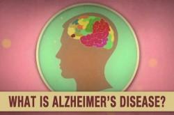 死に至る病 アルツハイマーの6つの進行ステップとは