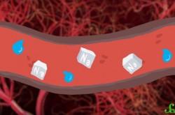 塩分のとりすぎはなぜ悪い? 高血圧とナトリウムの関係