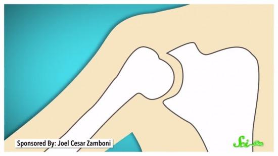 関節が柔らかすぎる人の体はどうなっているのか?